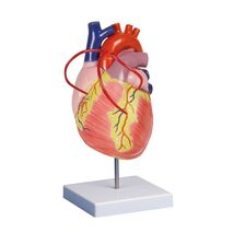 Μοντέλο καρδιάς με bypass - 2 φορές το πραγματικό μέγεθος - 2 μέρη
