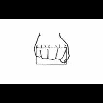 Δυναμικός νάρθηκας έκτασης των μετακαρποφαλαγγικών αρθρώσεων - 9Α